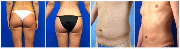 Before and After Gallery - WaterLipo® (Water-Jet Assisted Liposuction)