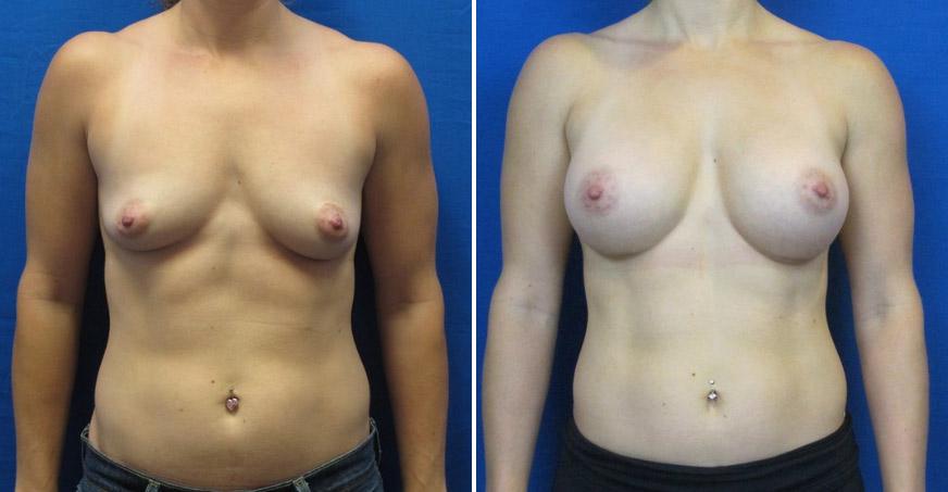 Breast Enhancement Patient 01