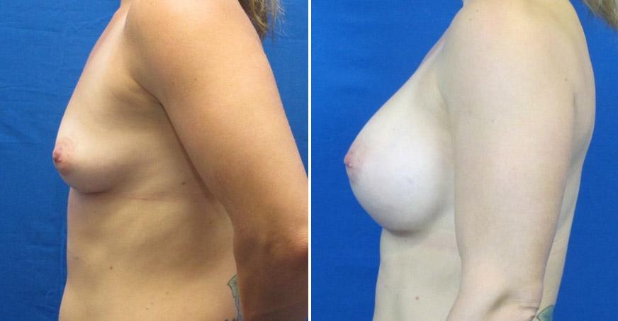 Breast Enhancement Patient 02