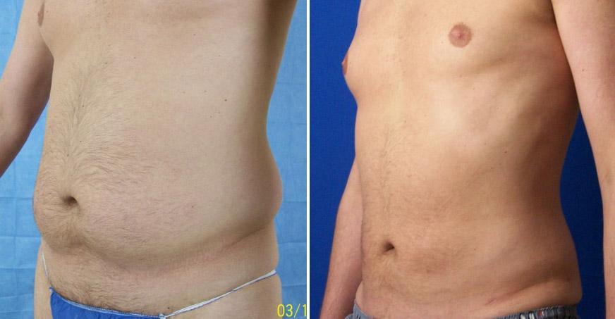 Liposuction Patient 01