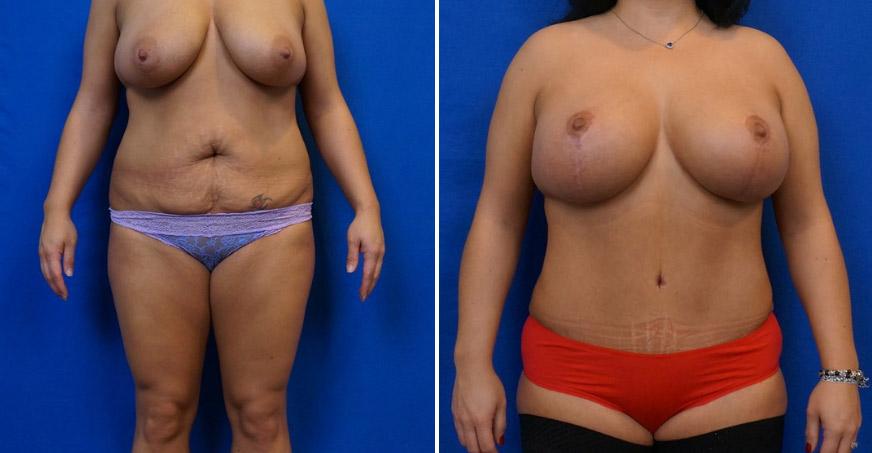 Liposuction Patient 03