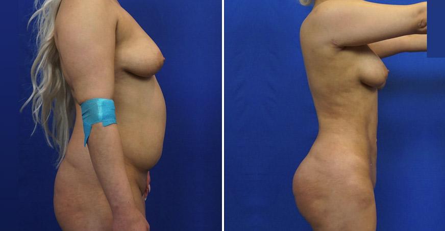 Tummy Tuck Patient 1