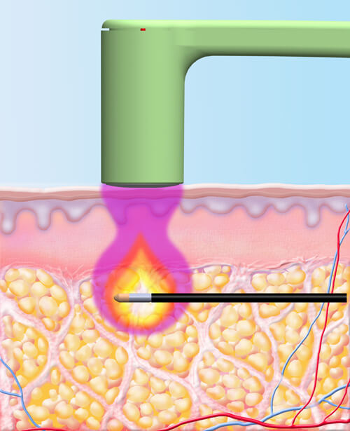 BodyTite (RFAL) Tummy Tuck Patient 1