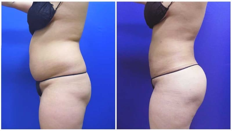 WaterLipo® treatment